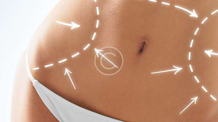 The fuller look breast augmentation