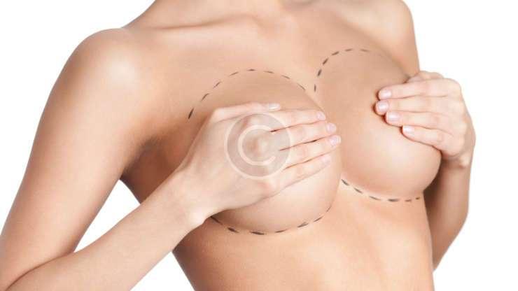 Cosmetic surgery statistics